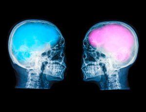 Blue and Pink Brains